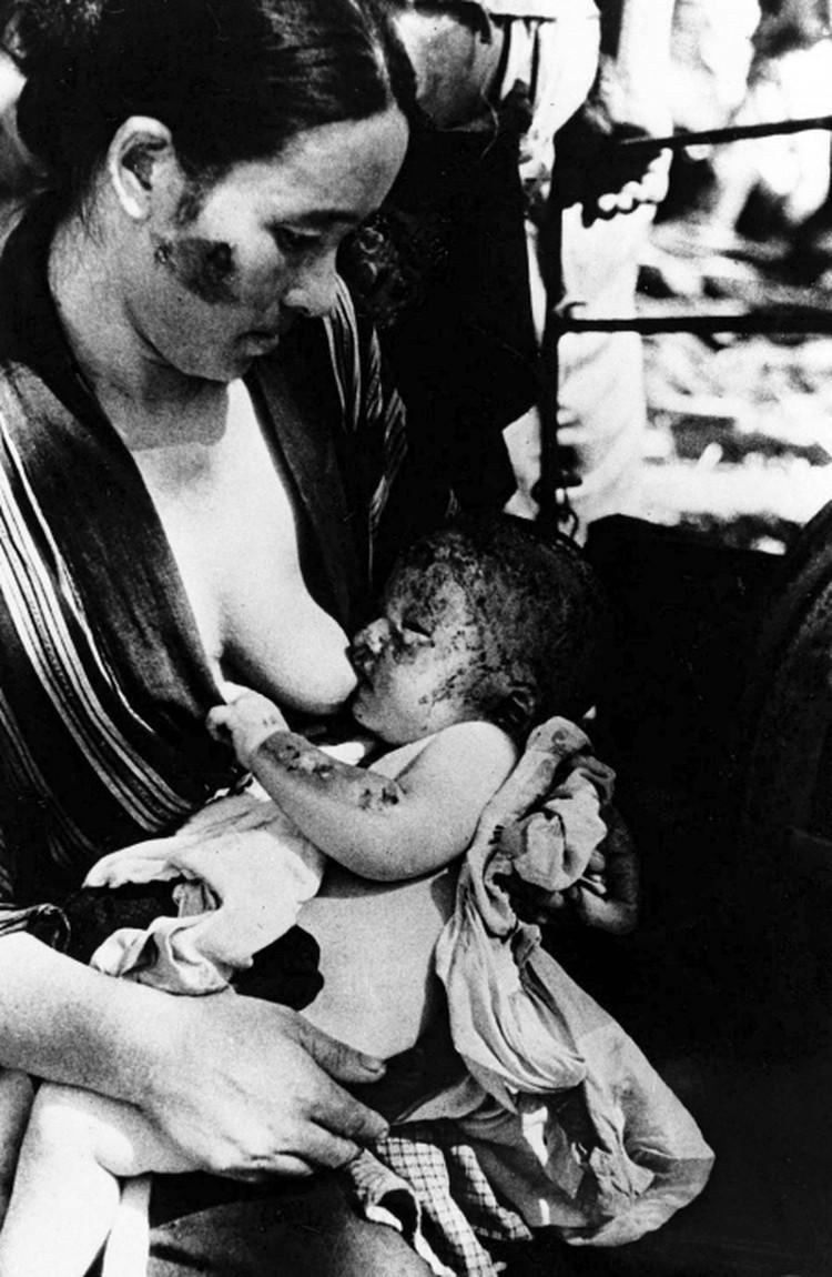 Эта фотография сделана на следующий день после того, как на Нагасаки была сброшена бомба