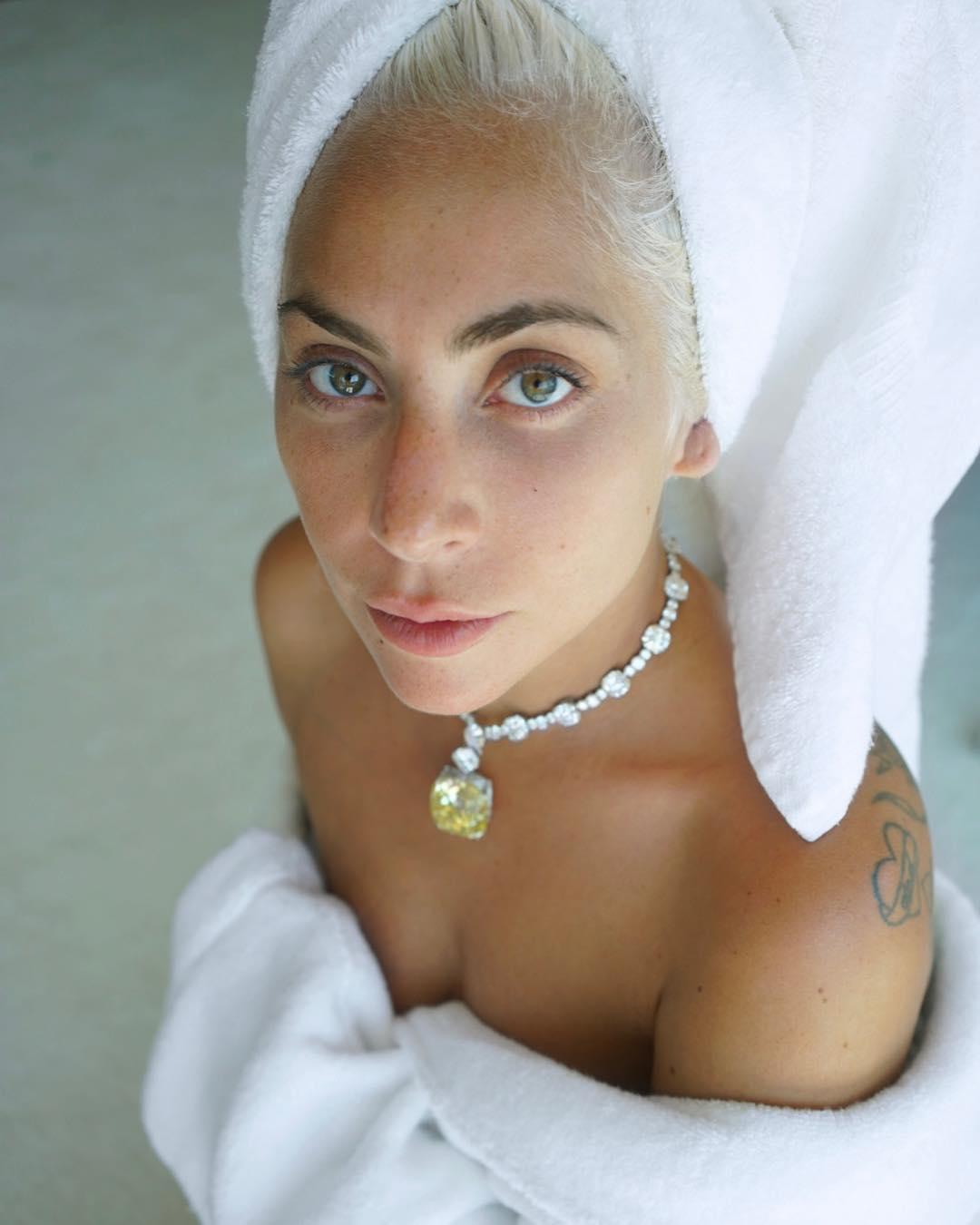 Леди Гага узнала страшном диагнозе - волчанка - девять лет назад